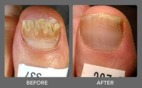toenail-fungus-before-after