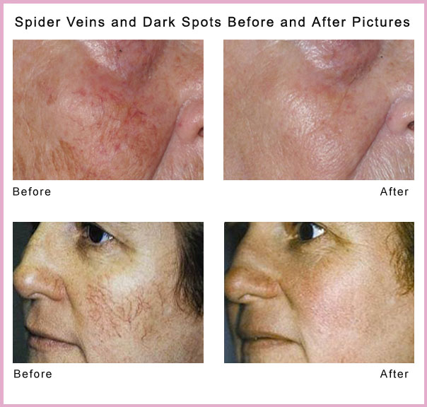 Spider Veins And Dark Spots   Before And After Copy